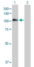 H00002548-D01P - Alpha-glucosidase