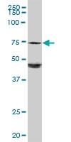 H00002581-D01P - Galactocerebrosidase