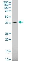 H00002584-A02 - Galactokinase 1