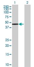 H00002585-B02 - Galactokinase 2