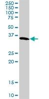 H00002597-D01P - GAPDH