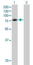 H00002617-B01P - Glycyl-tRNA synthetase