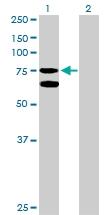 H00002617-D01P - Glycyl-tRNA synthetase