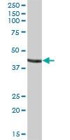 H00002628-B01P - Glycine amidinotransferase