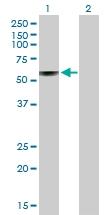 H00002629-B01P - Glucosylceramidase