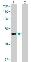 H00002629-D01P - Glucosylceramidase