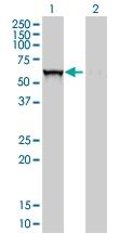 H00002629-M01 - Glucosylceramidase