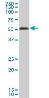 H00002638-B01P - Vitamin D-binding protein