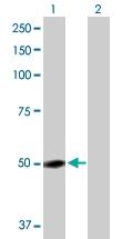 H00002638-D01P - Vitamin D-binding protein
