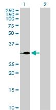 H00002641-D01P - Glucagon