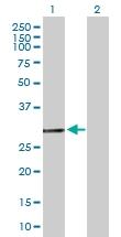 H00002643-B01P - GTP cyclohydrolase 1 (GCH1)