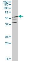 H00002645-B01P - Glucokinase / Hexokinase-4