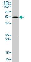 H00002645-B02P - Glucokinase / Hexokinase-4
