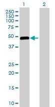 H00002645-D01P - Glucokinase / Hexokinase-4