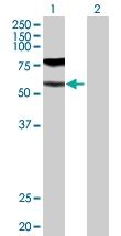 H00002678-D01P - CD224 / GGT1
