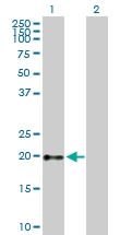H00002688-B01P - Somatotropin / Growth Hormone / GH1
