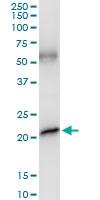 H00002688-D01 - Somatotropin / Growth Hormone / GH1