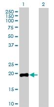 H00002688-D01P - Somatotropin / Growth Hormone / GH1