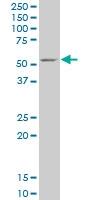 H00002710-A01 - Glycerol kinase