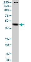 H00002717-D01P - Alpha-galactosidase A / GLA