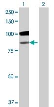 H00002720-B01 - Beta-galactosidase