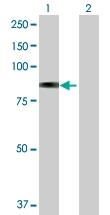 H00002720-D01P - Beta-galactosidase