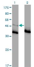 H00002741-M01 - Glycine receptor alpha-1