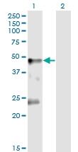 H00002741-M02 - Glycine receptor alpha-1