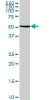 H00002747-B02P - Glutamate dehydrogenase 2