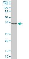 H00002752-M02 - Glutamine synthetase