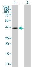 H00002766-B01P - GMP reductase 1 / GMPR1