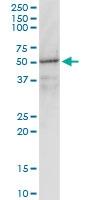 H00002770-M01 - G protein alpha inhibitor 1