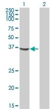 H00002773-B01P - G Protein alpha Inhibitor 3