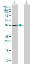 H00002776-B02P - G protein alpha Q / GNAQ