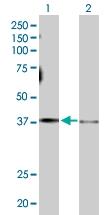 H00002778-D01P - Protein ALEX