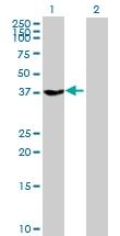 H00002781-B01P - G protein z alpha