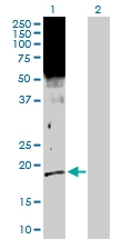 H00002810-D01P - 14-3-3 protein sigma / SFN