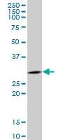 H00002810-M06 - 14-3-3 protein sigma / SFN