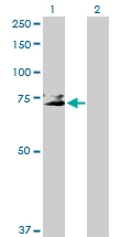 H00002811-D01P - CD42b / GPIbA