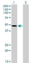 H00002847-D01P - MCHR1 / GPR24