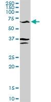 H00002875-D01P - Alanine aminotransferase 1 / ALT1