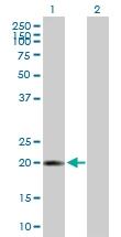 H00002882-B01P - Glutathione peroxidase 7 / GPX7