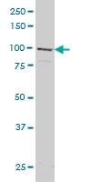 H00002894-M01 - Glutamate receptor delta-1