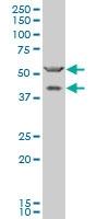 H00002896-A01 - Granulins (GRN)