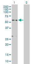 H00002896-D01P - Granulins (GRN)