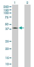 H00002898-B01 - Glutamate receptor 6 / GLUR6