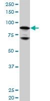 H00002908-M01 - Glucocorticoid receptor