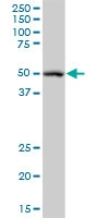 H00002936-B01 - Glutathione reductase