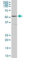 H00002936-D01P - Glutathione reductase
