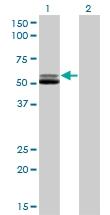 H00002936-M01 - Glutathione reductase